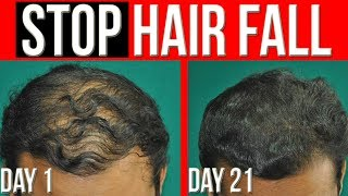 How to STOP Hair Fall FASTER | Get THICK HAIR (5 Tips to Prevent Hair Loss)