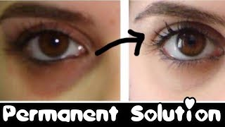 How to Remove Dark Circles Naturally Permanently - in 3 days ????JSuper Kaur