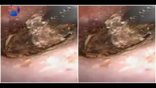 Video dokter keluarkan kelabang dari telinga bikin merinding