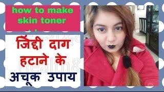 My PIMPLE skin care routine | DIY MAGICAL toner for Acne under Rs.30 | मुहँसों भरी त्वचा की देखभाल ।